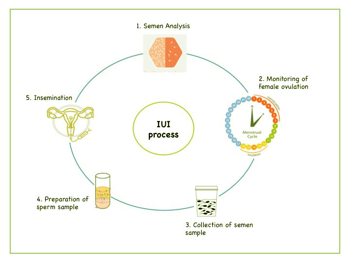 IUI Process